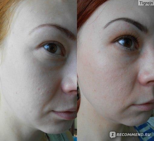 Лицо в целом до и после курса массажа