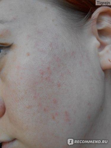Очищающее средство CHRISTINA Азуленовое мыло для нормальной и сухой кожи Fresh Azulene Cleansing  фото