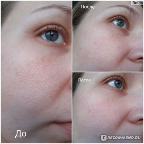 Тканевая маска для лица Чистая линия Для проблемной кожи фото