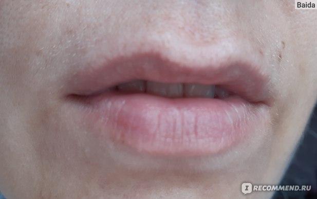 После снятия макияжа губ