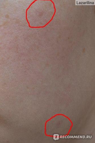 Лазерное удаление бородавок, папиллом, новообразований фото