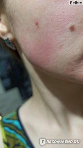 Гиперемия на чувствительной коже