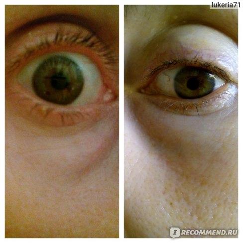 фото до и после, разницы нет.