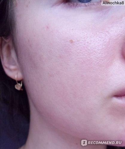 Сыворотка для лица The Ordinary Niacinamide 10% + Zinc 1% фото