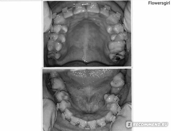 Керамические брекеты на желтых зубах