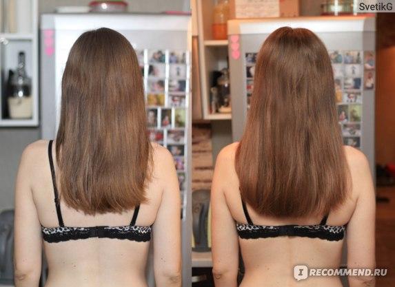 Рост волос за 1 месяц с маской
