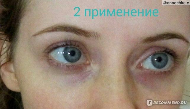 """Специально сфотографировала """"вид сверху"""". Наверняка вы замечали, что синяки под глазами темнее, если наклонить голову. Так вот, это МАКСИМУМ, на что способны синяки. Они уже не такие темные!!!"""
