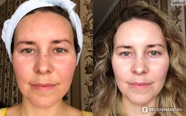 Dr.Jart+ Soothing Hydra Solution Deep Hydration Sheet Mask