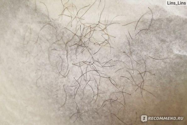 Выдернутые волоски с помощью эпилятору Браун.