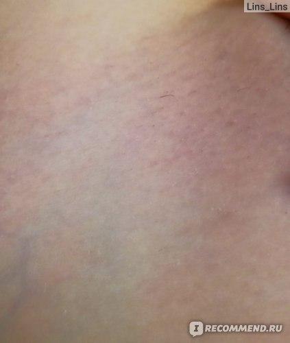 Эпилятор Braun Silk-epil 9 9-567 Legs, body & face фото