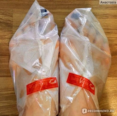 Педикюрные носочки Alltested Срединный пилинг фото