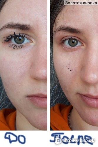 Мицеллярная вода Garnier 3 в 1 для всех типов кожи фото