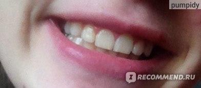 Зубная щетка натуральная Мисвак (или сивак) фото