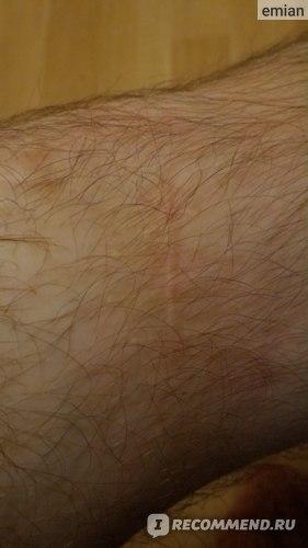Изображение - Пластика пкс коленного сустава отзывы 36nsAKHtZtNu4CIATJFKw