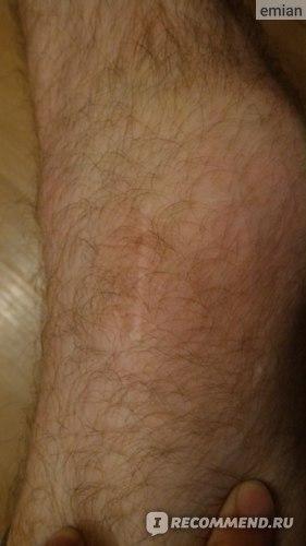 Изображение - Пластика пкс коленного сустава отзывы 5cYrePsjt8ubH4JakopIzA