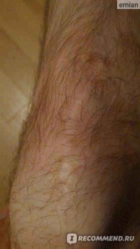 Изображение - Пластика пкс коленного сустава отзывы CC2xvXLYnbSAgUgoevPkQ