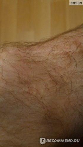 Изображение - Пластика пкс коленного сустава отзывы mIkz8lOtw9cJbiSUp2qHFg