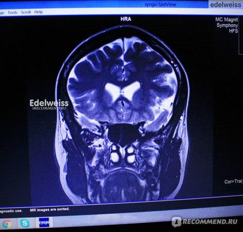 Магнитно-резонансная томография (МРТ) фото