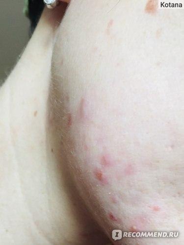 кожа до нанесения геля