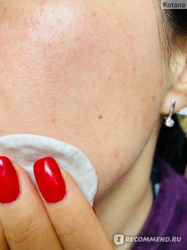 Лосьон для лица Dr.Sante очищающий Simply Clean SOS уход за проблемной кожей фото