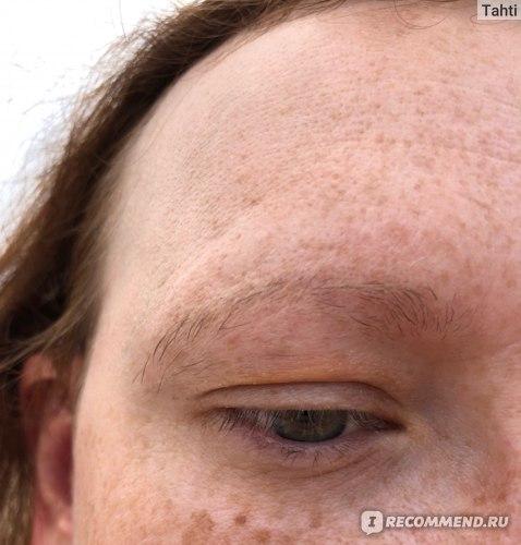 4 недели применения сыворотки, брови колосятся, ресницы растут и повторное шелушение пошло.