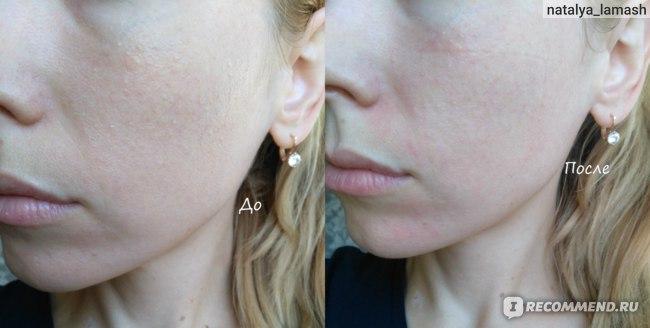 До и после применения тканевой маски No:hj Golden Modeling Foil Mask с гиалуроновой кислотой и золотом