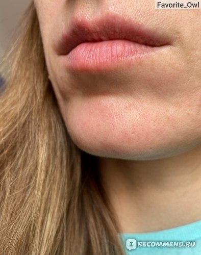 Губы ДО контурной пластики губ