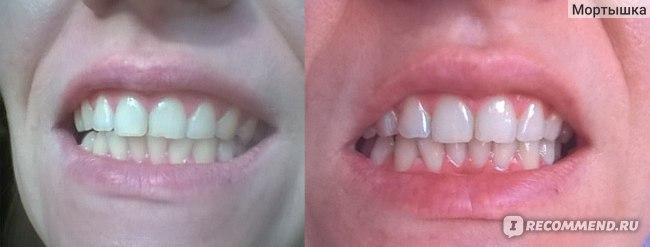 До и спустя 3 месяца пользования