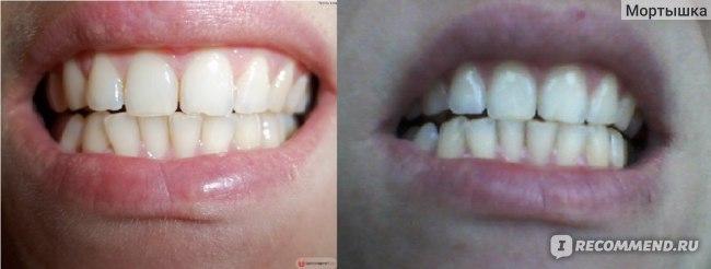 До и после месяца
