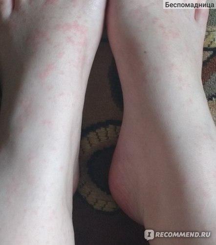 Я подзабыла подумала ,да ладно ерунда...Посмотрела на ноги и вот!