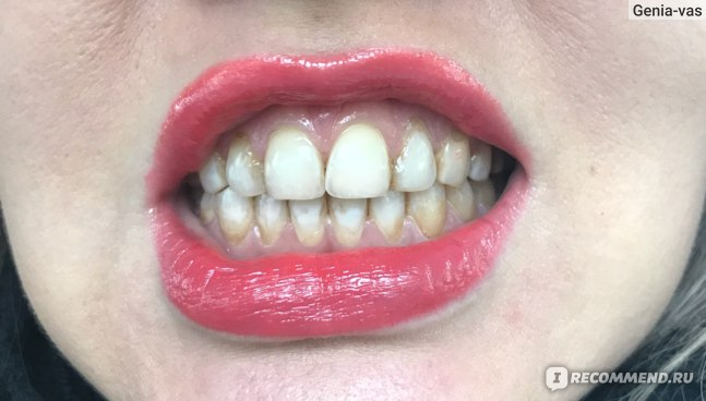 Отбеливание зубов кварцевым аппаратом  фото