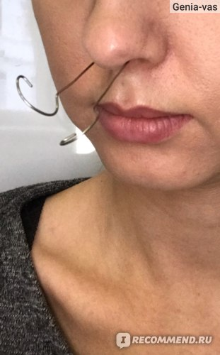 """""""Кукушки"""" - промывание пазух носа в стационаре фото"""