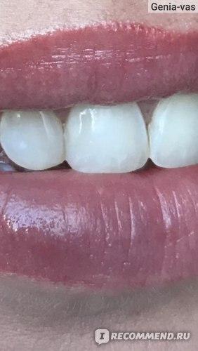 Между зубами у меня пломбы, но их совсем не видно.