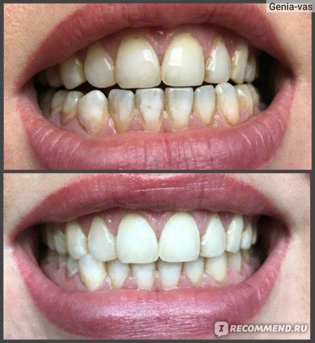 Косметическое отбеливание зубов по американской технологии Smile Room фото