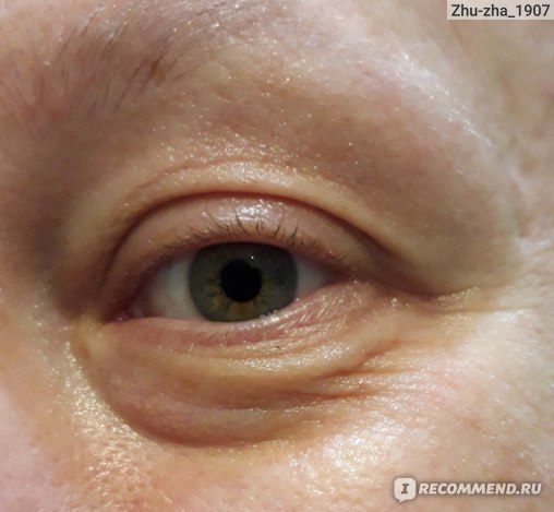 Крем для глаз Icon Skin Омолаживающий с пептидами и стволовыми клетками Youth Elixir