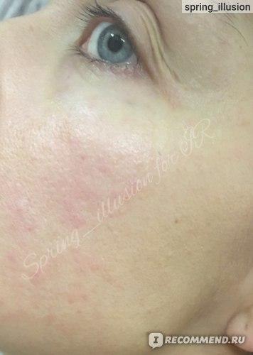 Лосьон для лица Don't touch my skin Отшелушивающий для жирной и проблемной кожи фото