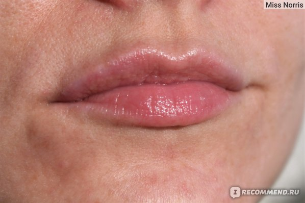 Чёрные точки по контуру губ