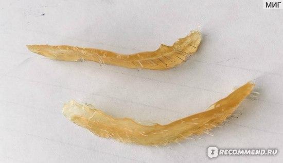 Результат удаления нежелатеьных волосков