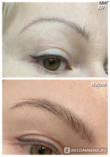 До / после спустя месяц (брови не накрашены)