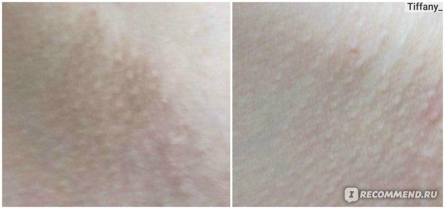 Интимное отбеливание (осветление) кожи в домашних условиях фото