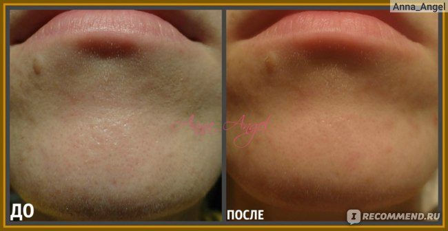 Гель-пилинг для лица The Saem Cell Renew Bio Micro Peel Soft Gel  фото
