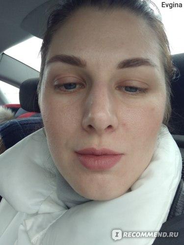 Ретиноевый (ретиноловый, желтый) пилинг фото