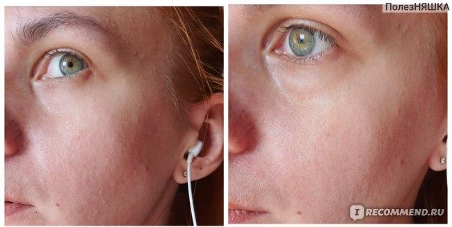 Так выглядит мгновенный результат: слева до, справа после