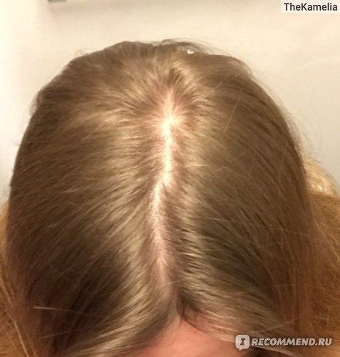 во время волосопада