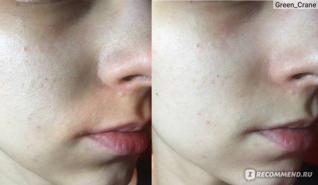 Тканевая маска для лица  Double Dare OMG! Red Bubble Mask фото