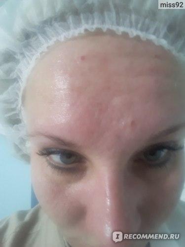 Лицо после разогревающих масок