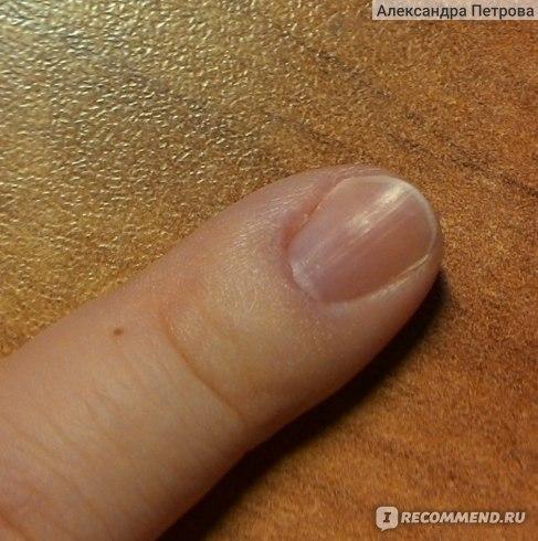 Ноготь мезинца после обработки гелем CND (все косяки видны, на фото формой ногтя еще не занималась)