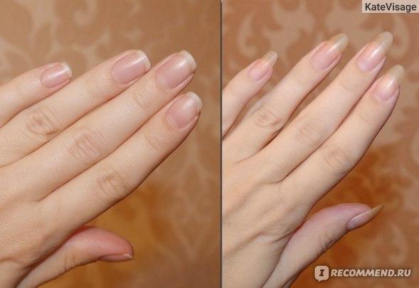 Средство для укрепления ногтей Limoni Рост и укрепление Opti Grow фото