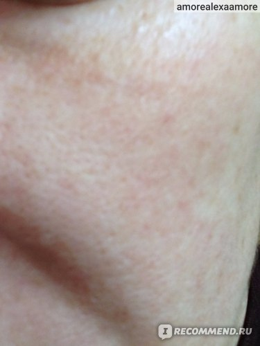 кожа после снятия маски