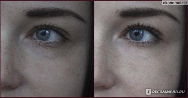 Справа фото после недели использования